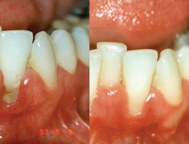 Gum Disease Therapy in Peterborough