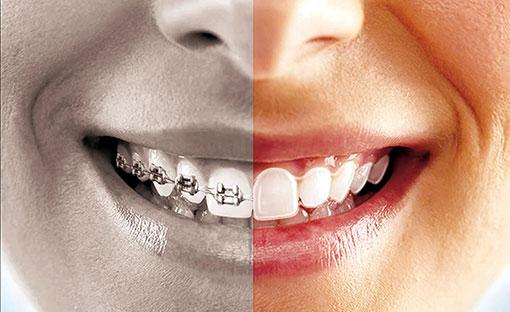 Invisalign vs metal braces