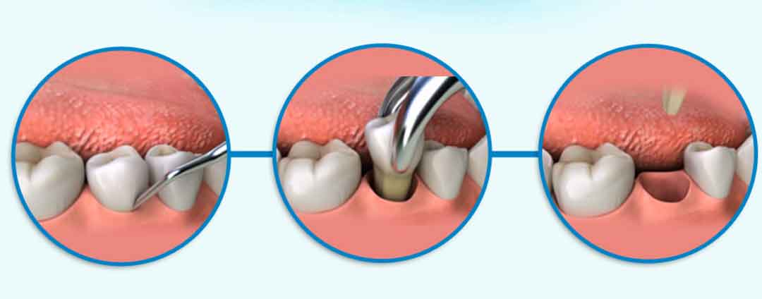 Stages of Tooth Extraction