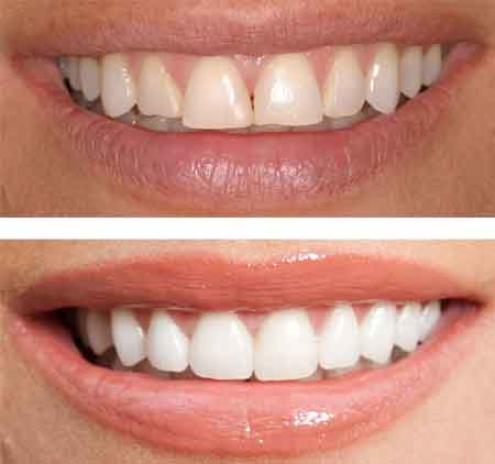Before and After Teeth Shaping