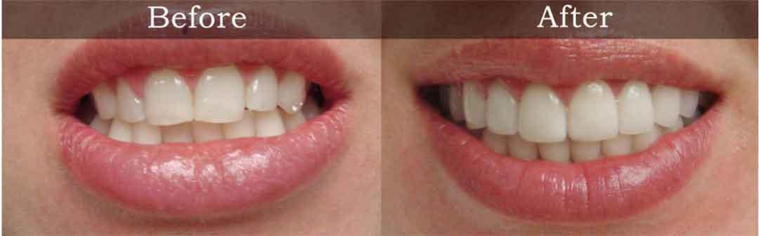 Teeth Shaping in Peterborough