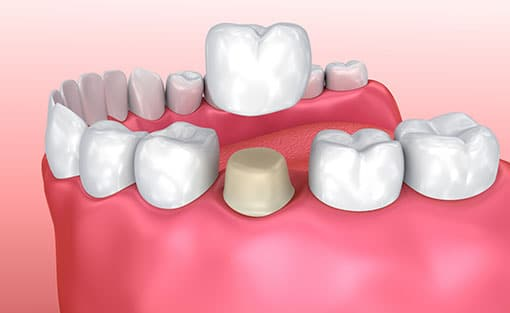 Dental Crowns in Peterborough