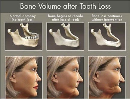 Dental Implants Bone Volume Tooth Loss