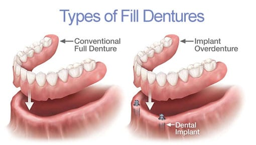 Dental Implants | Peterborough | Dr. Vipin Grover
