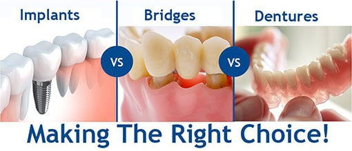 Implants vs Bridges vs Dentures