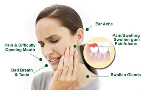 Symptoms of Wisdom Teeth